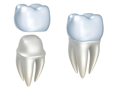 Dental Crowns at Fusion Dental Specialists