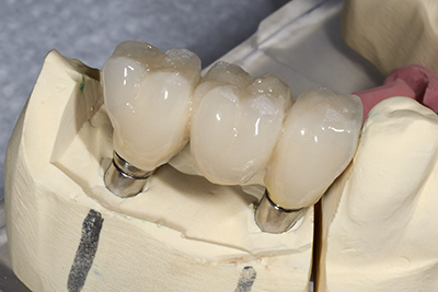 Dental bridge from lab iStock 000057401644 Large width of 400 pixels